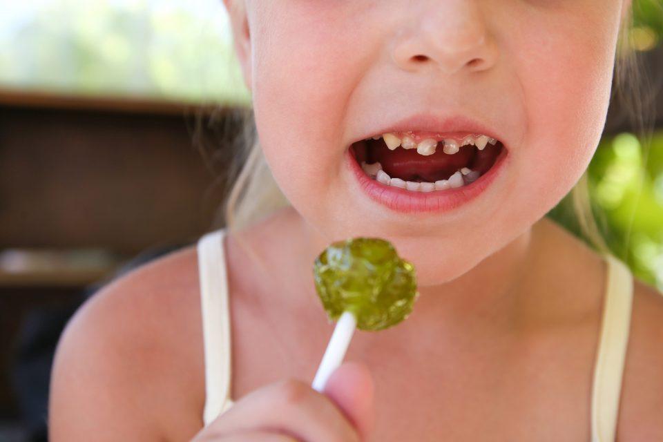 Jeune fille avec des caries sur les dents